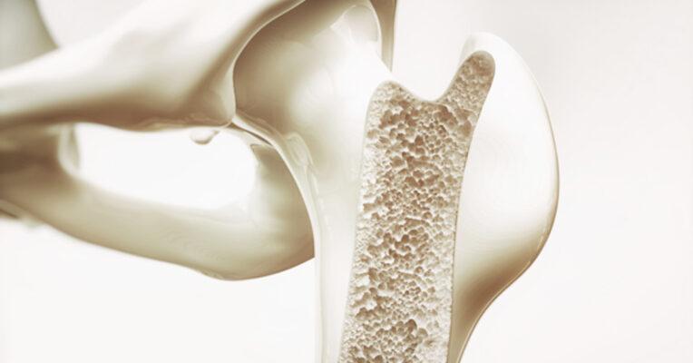 cơ xương khớp Archives - Health Central